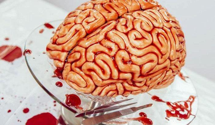 Cervello in bellavista