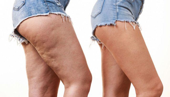 Cellulite, 5 cibi da evitare