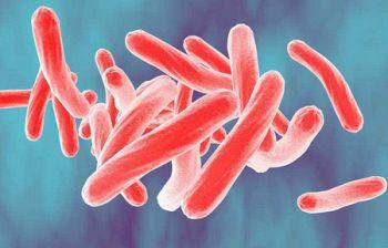 Torna la tubercolosi? Nessun allarme, le microepidemie sono normali