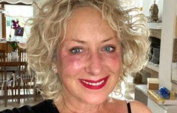 """Carolyn Smith, buone e cattive notizie: """"Non c'è più segno del tumore ma.."""