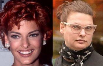 Linda Evangelista: dramma per l'ex top model sfigurata, ecco cos'è successo