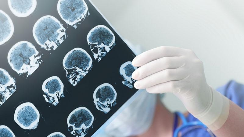Alzheimer, all'università di Bari la malattia si predice col computer