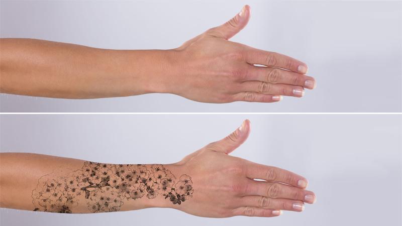 la rimozione di un tatuaggio