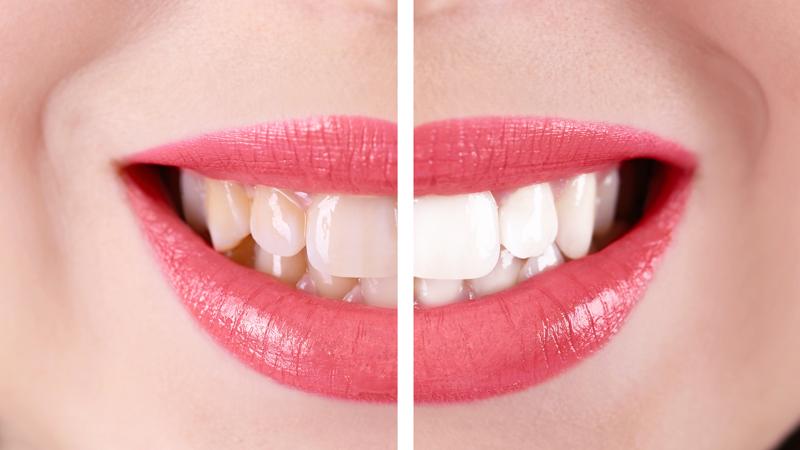 sbiancamento dentale come si fa