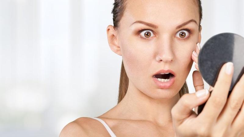macchie sul viso: cosa sono?