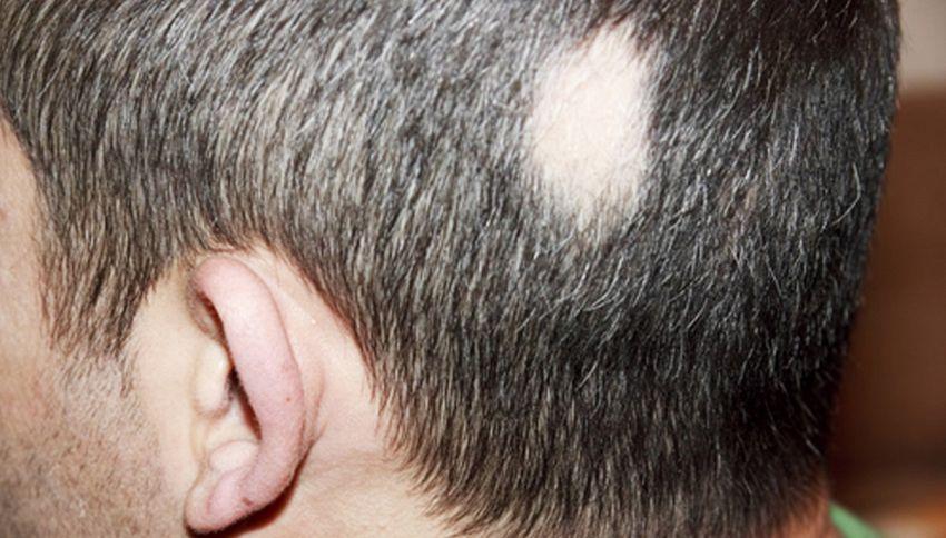 Farmaco per artrite reumatoide può curare l'alopecia