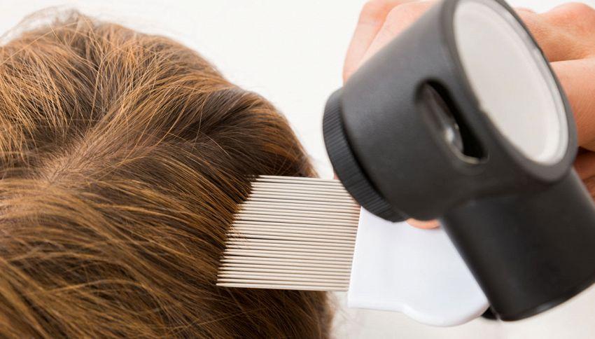 Come ti stampo i capelli: curare la calvizie grazie alle stampanti 3D