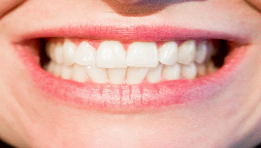 Bicarbonato di sodio per sbiancare i denti, funziona davvero?