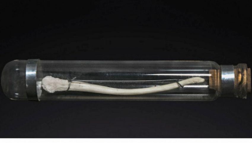 L'uomo aveva un osso nel pene: ecco perché l'ha perso
