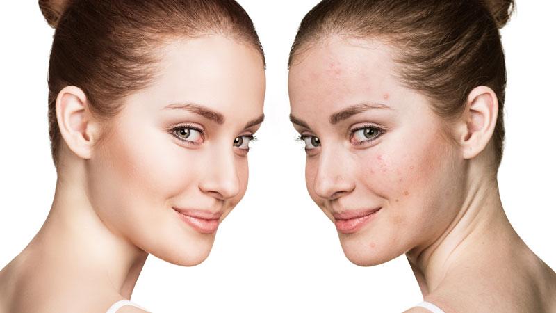 Bagno Di Vapore Brufoli : Come utilizzare il bicarbonato di sodio per eliminare l acne