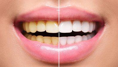 Perché i denti diventano gialli?