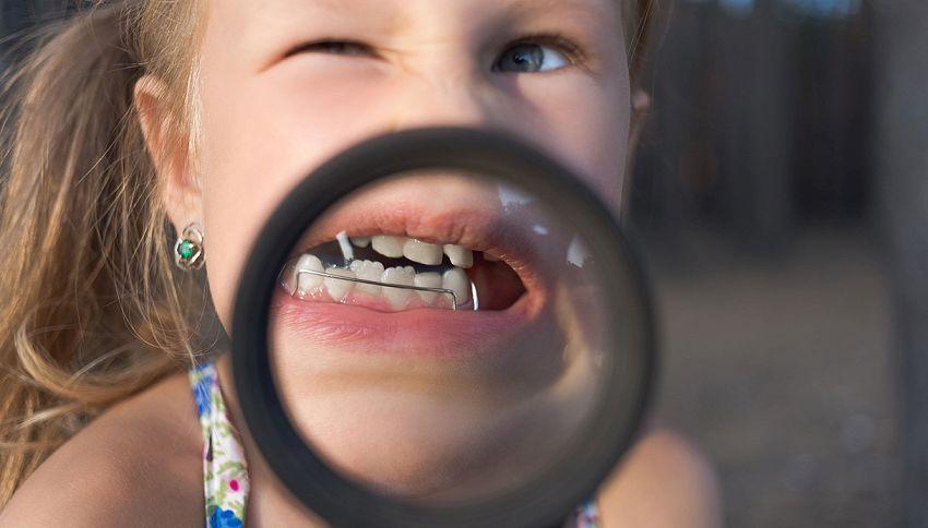 Tuo figlio porta l'apparecchio ai denti? Colpa di tuo marito