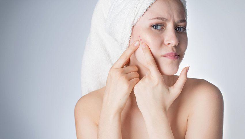 Quante volte dovresti lavare il viso per evitare l'acne