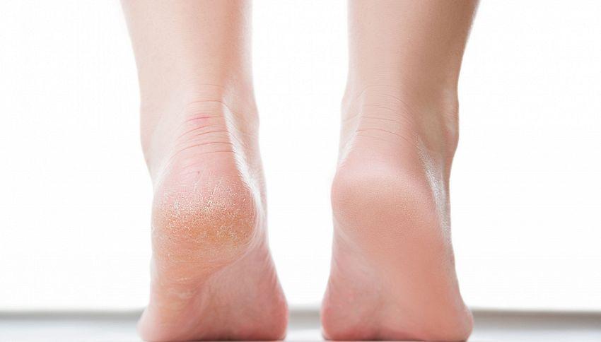 Il collutorio per i piedi? Il trucco per i talloni screpolati