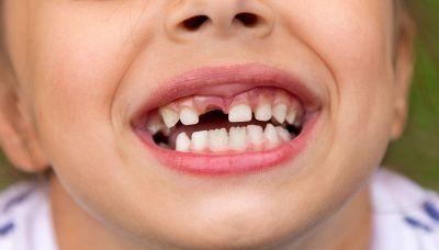Perché quando cade il dentino arriva la fatina o il topolino a portare soldini?