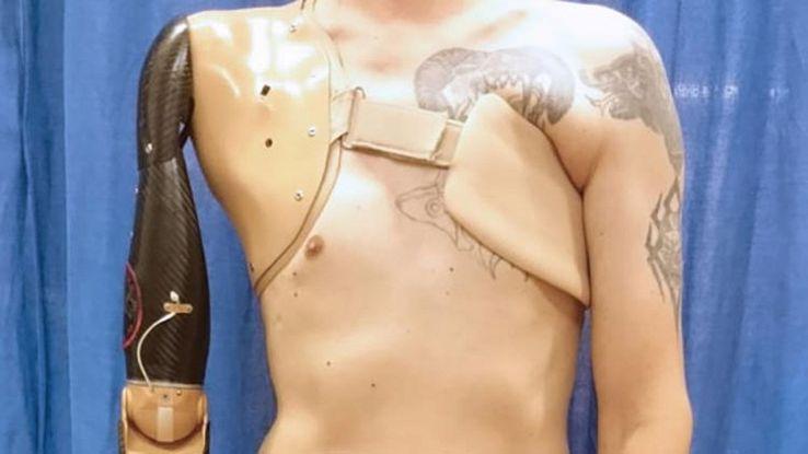 La protesi robotica che riproduce i movimenti del braccio