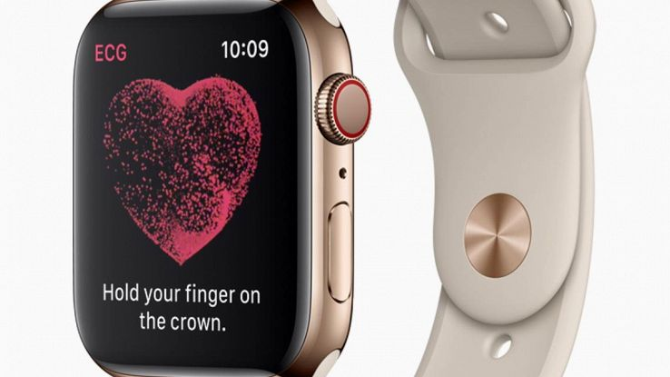 Su Apple Watch è in arrivo l'Ecg