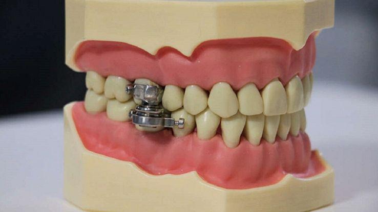 """Perdere peso grazie ad un apparecchio """"speciale"""": come funziona il lucchetto per mandibole"""