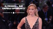 Game of Thrones ha imposto a Sophie Turner di stare lontana dallo shampoo