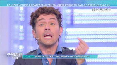 """La liposuzione di Raffaello Tonon: """"Io passato dalla 50 alla 44"""""""