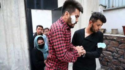 Afghanistan, giornalisti mostrano lividi: pestati dai talebani