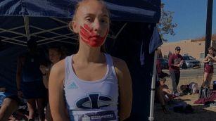 Chi è Rosalie Fish l'atleta con l'impronta di una mano disegnata sul volto