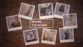 'Behind the scars': ogni cicatrice, una storia