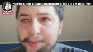 """Giuseppe, sfregiato dall'acido: """"Abbandonato dallo Stato e senza giustizia"""""""