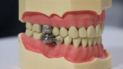 Il magnete blocca mandibola contro l'obesità
