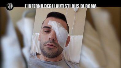 REI: Autista di bus picchiato a Roma: l'azienda lo licenzia