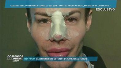 Il nuovo naso di Angelo Sanzio